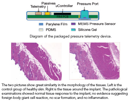 schematic of package layers; L & R tissue slides: Caption 1: Diagram of the packaged pressure telemetry device. Caption 2: The two pictures show great similarity in the morphology of the tissues. Left is the control group of healthy skin. Right is the tissue around the implant. The pathological examinations showed normal tissue response to the implant; no evidence suggesting foreign body giant cell reaction, no scar formation, and no inflammation.