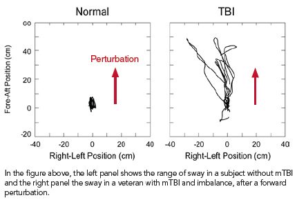 Charts illustrating range of sway in veteran with mTBI and without mTBI