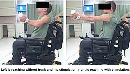 Demonstration of balance control with implanted neuroprosthesis